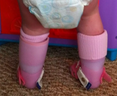 Leg braces: does my child need these?